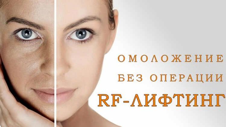 RF лифтинг: суть метода, польза и предостережение