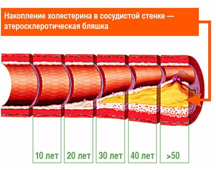 Чистка сосудов от холестериновых бляшек и для профилактики атеросклероза
