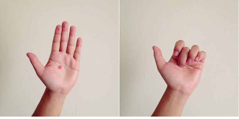 акупунктурные точки на руке человека схема расположения