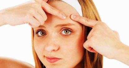 Как избавиться от прыщей на лице: советы косметологов