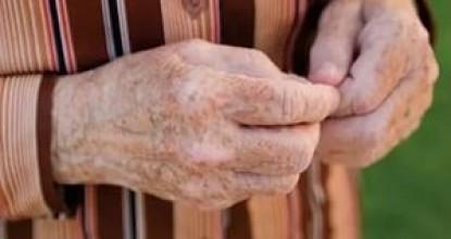 Как удалить пигментные пятна на руках