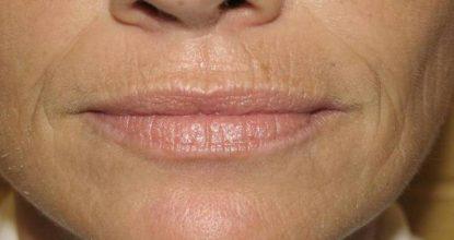 Как убрать морщины над верхней губой: лучшие способы