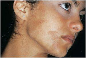 Как удалить пигментные пятна на лице: лучшие способы