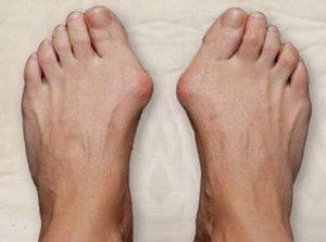 Причины роста косточек на ногах симптомы и методы лечения
