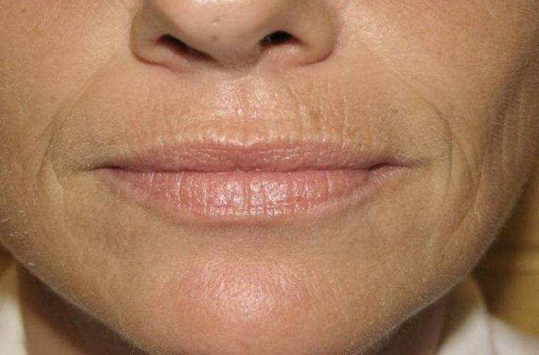 От носа к краю губ