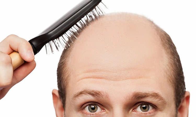 Как укрепить волосы мужчине