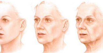 Иземения на лице
