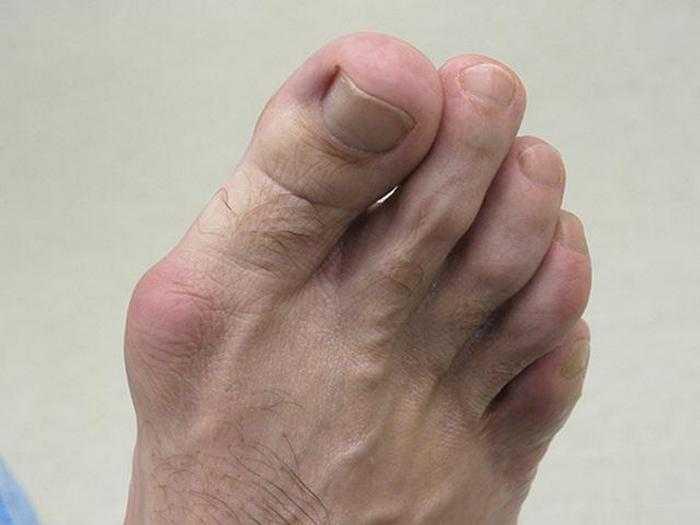 Упражнения от косточки на большом пальце
