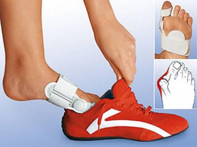 Что делать если начала расти косточка на ноге у большого пальца