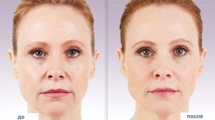 Биоревитализация: фото до и после