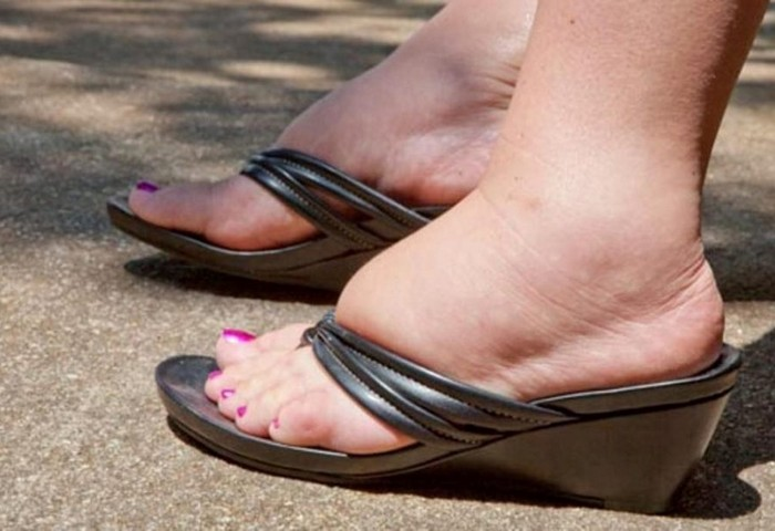 Почему в жару отекают ноги?