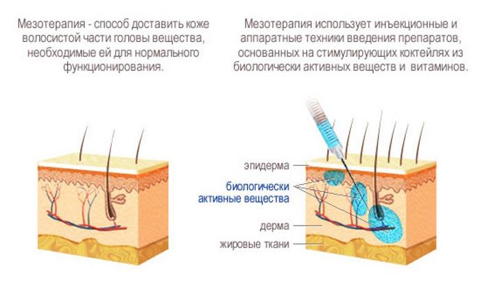 как действует мезотерапия