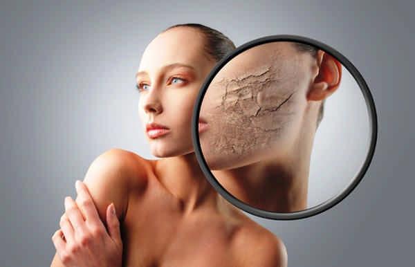 влияние зимы на кожу