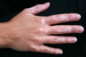пигментные пятна руках