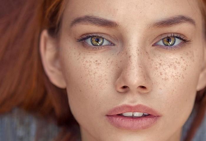 Как избавиться от веснушек при помощи народных и косметологических методов