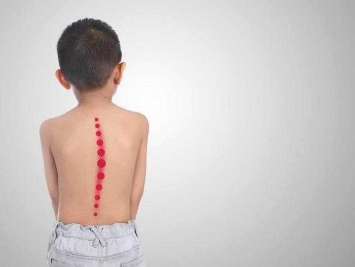 Комплексы упражнений для исправления осанки у детей и подростков