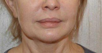 Как убрать брыли и подтянуть овал лица: упражнения, массаж и маски
