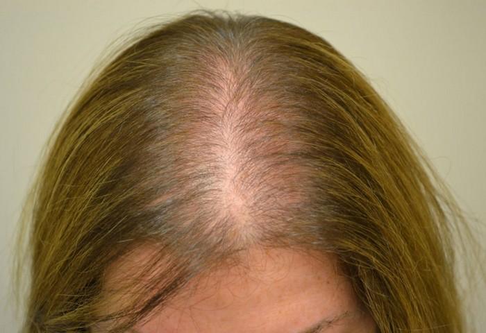 Почему выпадают волосы у женщин и что делать в этом случае?