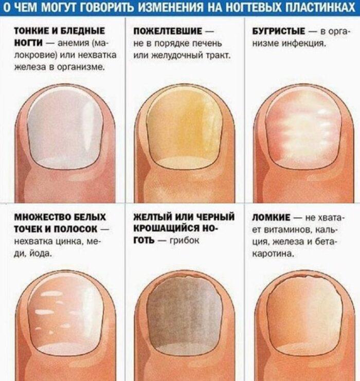 изменение ногтевй пластины