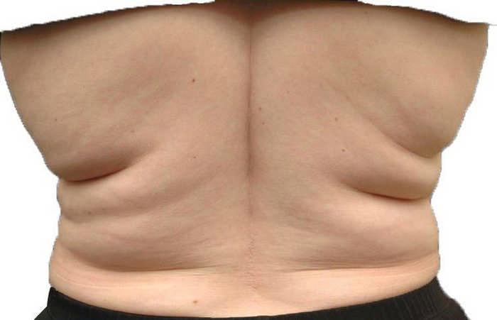 Как убрать жировые складки на спине: лучшие рекомендации